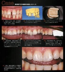 歯間離開のCR