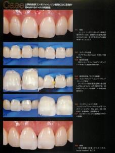前歯の間のCR