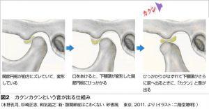 関節円板について木野図2